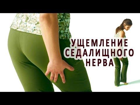 Защемление нерва в тазобедренном суставе