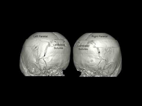Osteocondrosi delle lombari cause sacrale