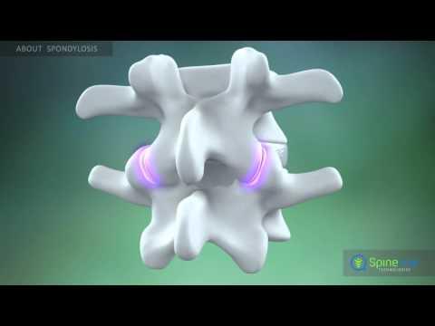 Csípődemokrózis tünetei és kezelése