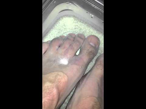 I cured tumatakbo fungus toenails