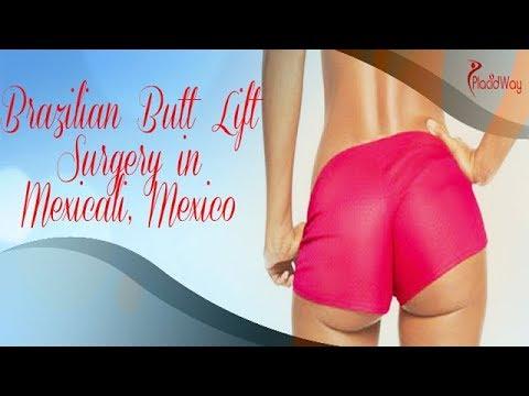 Brazilian Butt Lift in Mexicali Mexico