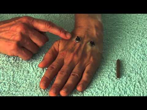 Se il cancro alla prostata a vapore dopo lintervento chirurgico