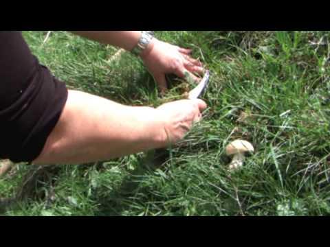 Ammaccatura sotto ununghia su un trattamento di pollice di gamba