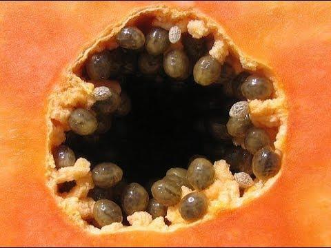 Squamous papilloma back of tongue
