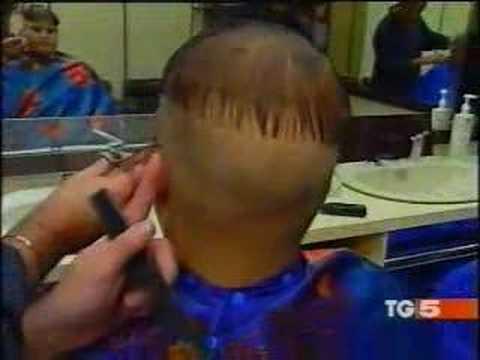 Comprare la capsula vichy da una perdita di capelli