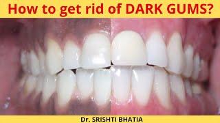 How to get rid of DARK GUMS? Dr. Srishti Bhatia