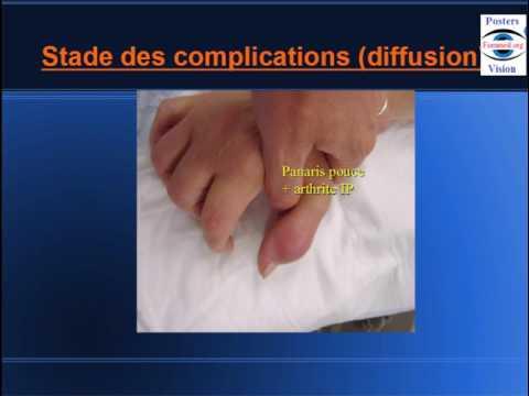 Klotrimazol linstruction pour lapplication au microorganisme végétal des ongles