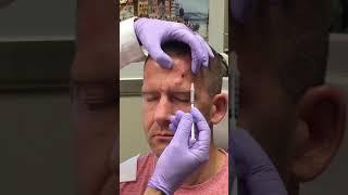 Botox Injection for Chronic Migraine