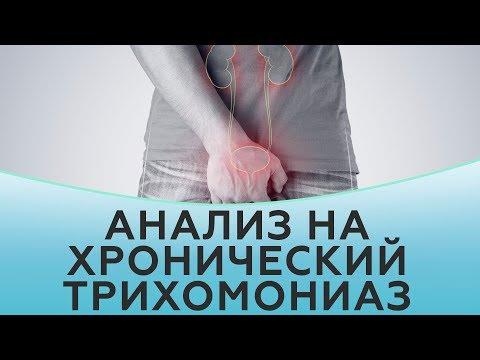 Komplex gyógyszerek prosztatagyulladásra