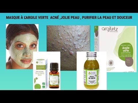 Le masque pour la peau beaucoup desséchée de la personne