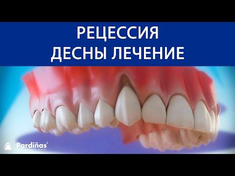 Pецессия десны лечение ©