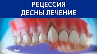 Эффективные средства для укрепления десен и зубов