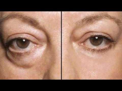 Маска для лица против морщин вокруг глаз