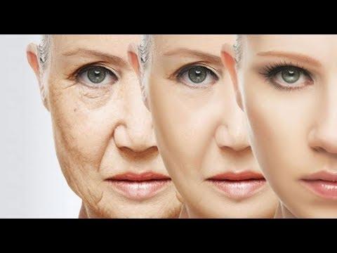 Lurina da pigmentary nota su una faccia