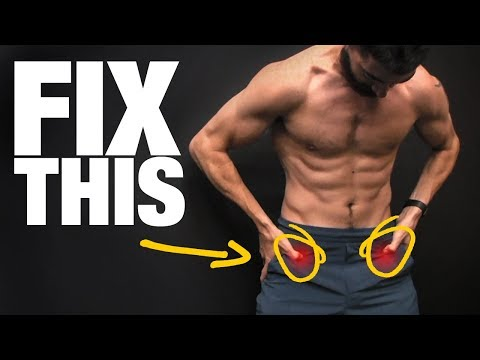 How to Fix Tight Hips (WITHOUT STRETCHING!)