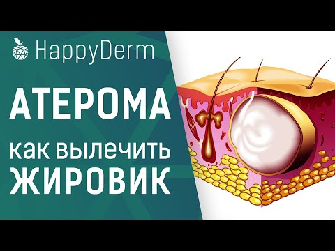 Атерома — что это такое, в чём отличие от липомы, опасен ли жировик на теле и как удалить атерому