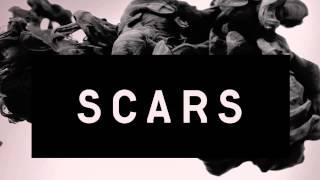 Alesso - Scars (Instrumental Karaoke)