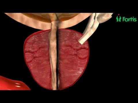 El poder al retirar el cáncer de próstata