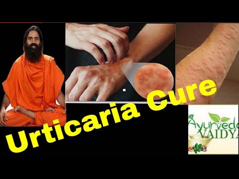 Hidrocortisona de dermatite de atopic