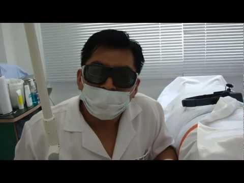 Tratamiento láser para lunares o verrugas de carne en cuello y axila