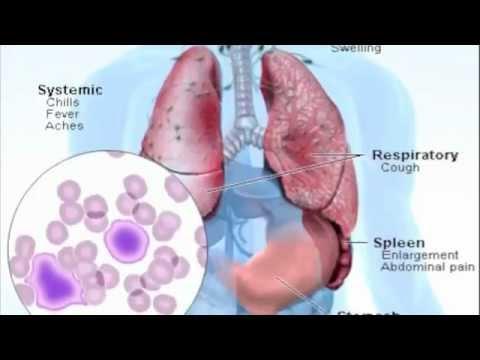 Video Mono Symptoms - What is Mononucleosis?