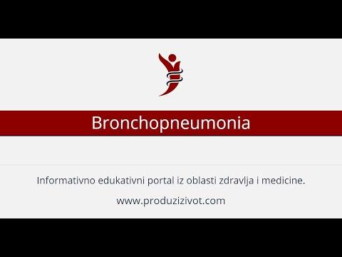 Koje lijekove liječenje hipertenzije