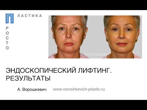 Ботомаска для лица и шеи с гиалуроновым заполнителем морщин