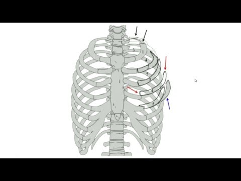 Rib Fracture - Michael Todd, MD