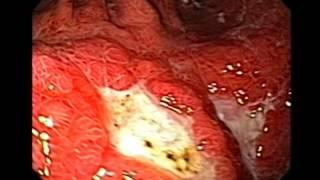 Endoscopy of Gastric Mucosa Associated Lymphoid Tissue MALT Lymphoma