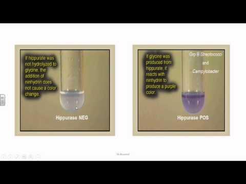 Aree di fibrosi e calcificazione della prostata