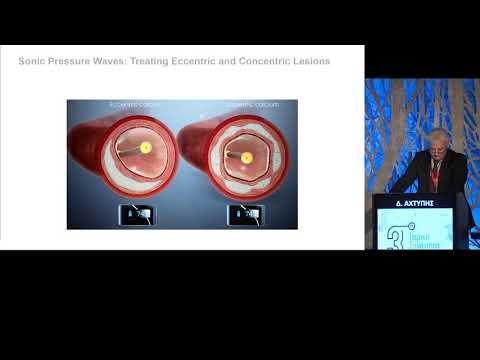 Αχτύπης Δ. - Ασβεστωμένες αρτηρίες: αντιμετώπιση με ενδαγγειακή λιθοτριψία Shockwave