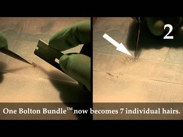 Dr. Brett Bolton Hair transplants videos