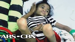 Rated K:  Gennalyn Palaña  suffers from severe acute malnutrition