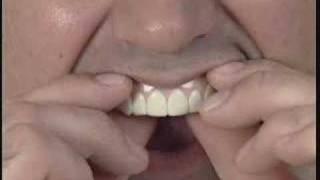 Imako Cosmetic Teeth® Fitting Instructions
