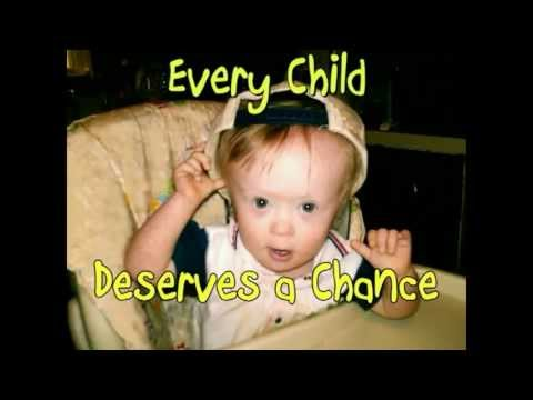 Watch video Down Syndrome Lost Forever