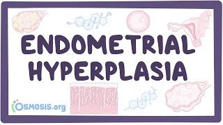 Endometrial hyperplasia - causes, symptoms, diagnosis, treatment, pathology