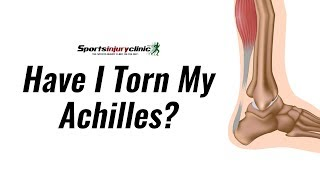 Have I Torn My Achilles Tendon? - Thompson's Test Explained