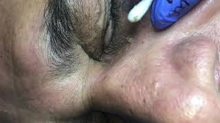 HAVING BLACKHEADS FROM 50 YEARS by Dr Lalit Kasana - Самые