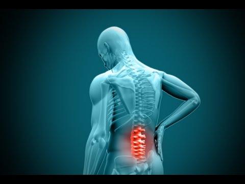 Osteochondrose der lumbalen l1-s1