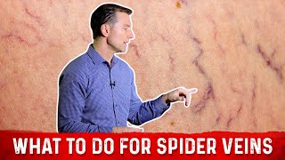 The Best Remedy For Spider Veins (and Chronic Venous Insufficiency)