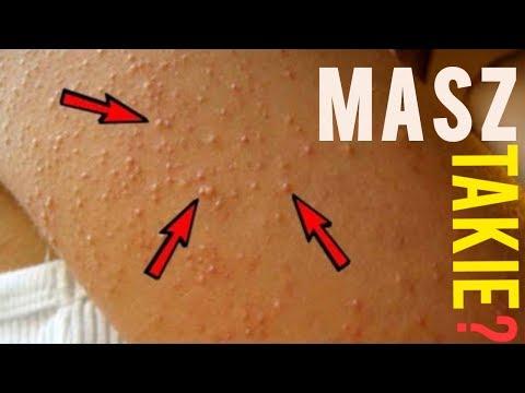 Koślawe kolana u dziecka poniżej 2 latach leczenia