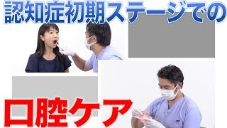 認知症初期ステージでの口腔ケアの特徴