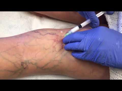 Creșterea hormonală varicoasă