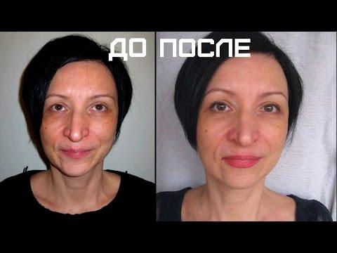 Видео как скрыть пигментные пятна на лице