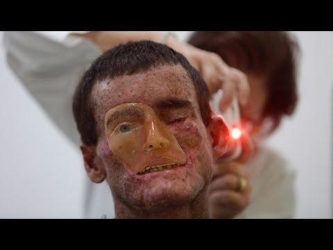 Maska dla skóry tłustej wybielanie