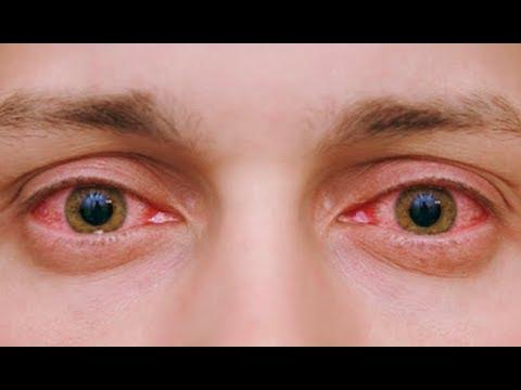Как убрать красные глаза: 10 домашних способов