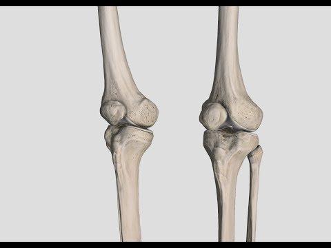 Fibula Knochen der Kniescheibe - Enzephalopathie und Behandlung von ...