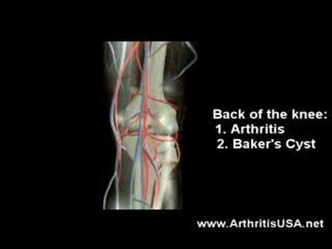 Location of Knee pain? Where does it hurt in your knee?