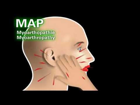 Dureri articulare după menopauză