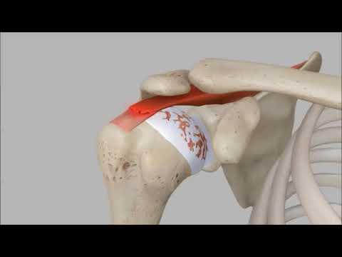Un método para el tratamiento de hernia de columna cervical